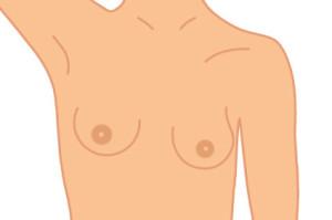brustvergroesserung_1