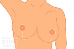 brustverkleinerung_3bb-post